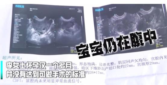 6月12日,湖南一女子在一家医院做流产手术,进行50分钟后手术突然终止,医生说的一句话