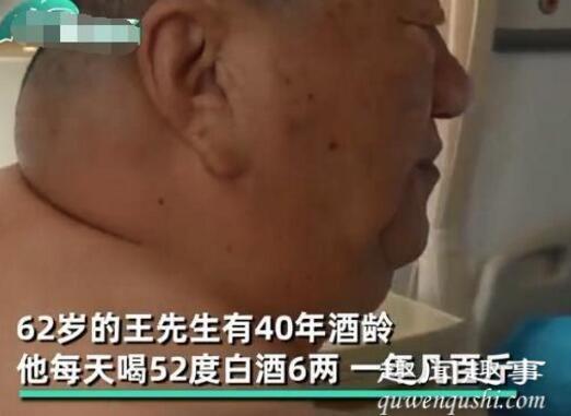 辽宁沈阳大叔40年喝掉8700斤白酒 身体发生惊人变化太可怕究竟是怎么回事?